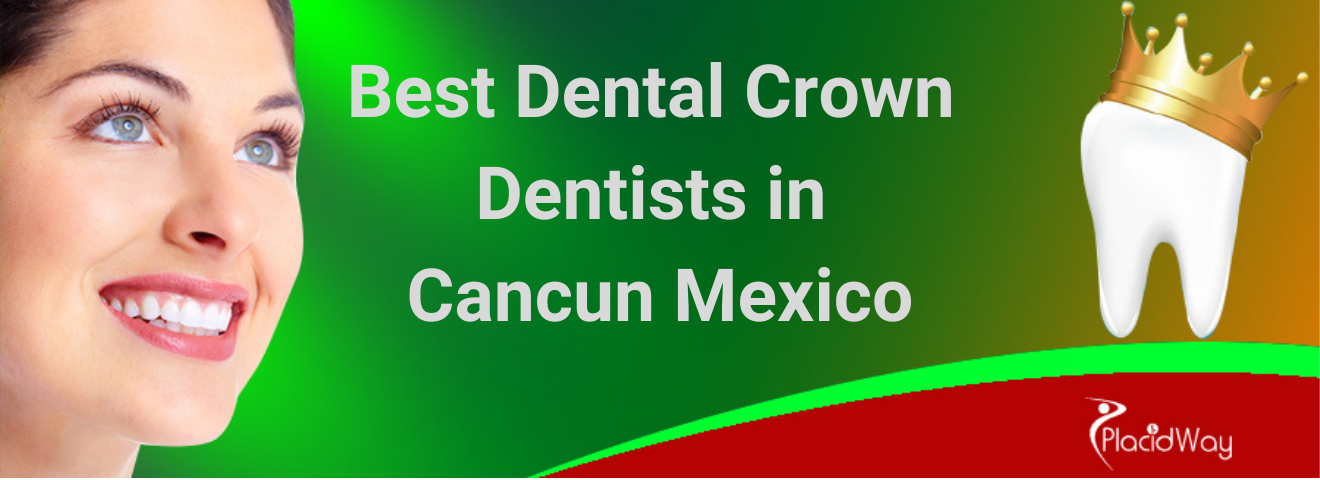 Best Dental Crown Dentists in Cancun Mexico